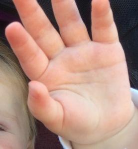 hand-skin-high5